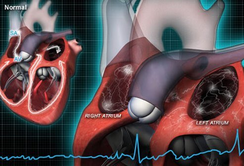 Heart rate in AFib is rapid and irregular.