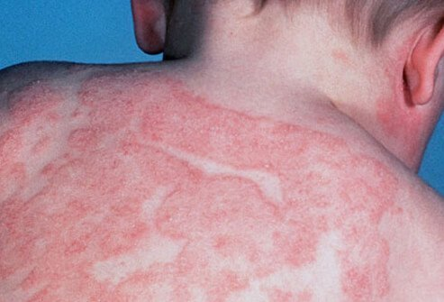 Picture of Atopic Dermatitis or Eczema