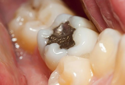 Dental fillings can become a popular breeding ground for bacteria.