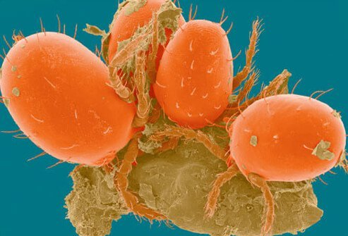 Chiggers are a type of mite from the family known as Trombiculidae.