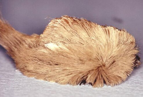 The puss caterpillar (woolly slug, or asp) is the most toxic caterpillar in the U.S.