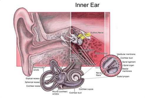 An illustration of the inner ear showing the structures affected by perilymph fistula.