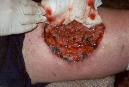 As the reaction to the brown recluse spider bite progresses, severe necrotic lesions with deep, wide borders can result.