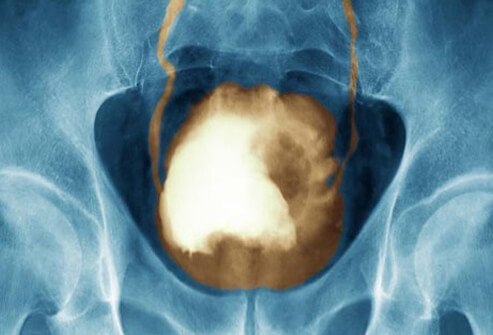 An x-ray of bladder cancer.