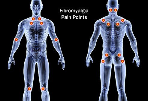 Fibromyalgia causes widespread pain all over the body.