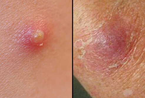Symptoms of boils start out as a hard, red, painful lump which eventually becomes softer, larger, and soon formsming a pocket of pus.