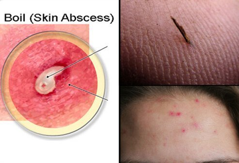Boils are usually caused by bacteria called Staphylococcus (staph). Some boils can be caused by an ingrown hair, splinter or other foreign material, or acne.