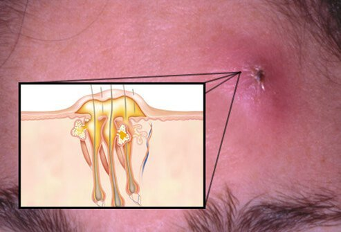 Carbuncles are considered more serious skin conditions.