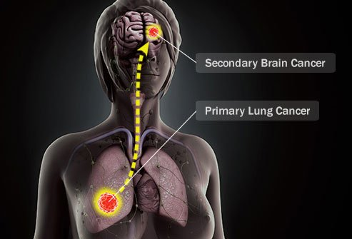 Secondary brain cancer starts elsewhere and spreads to the brain.