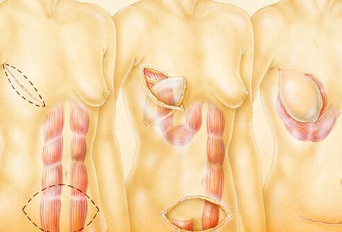 Breast cancer reconstruction surgery.