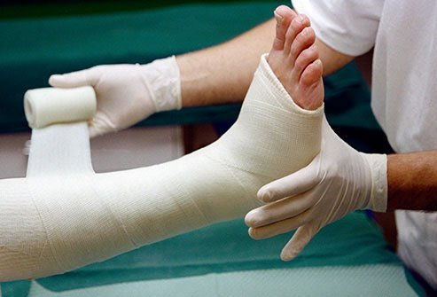 A cast immobilizes a bone while it heals after a fracture.