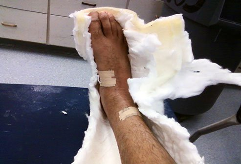An injured area may appear smaller and hairier after a cast is removed.