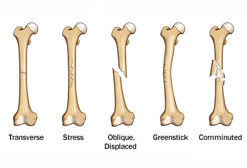 There are several different types of bone fractures.