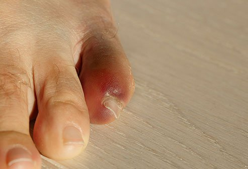 Pain, swelling, and bruising are a few symptoms of bone fractures.
