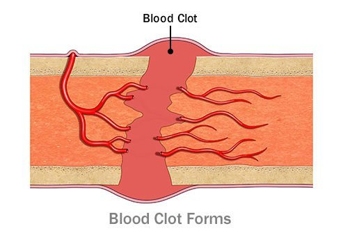 In the initial healing phase, a blood clot initially forms at the fracture site.