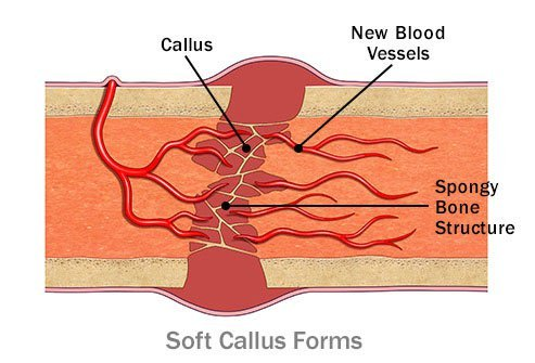 A soft callus gradually replaces the blood clot.