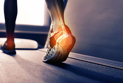 Heel pain can be caused by a variety of reasons.