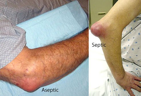 Septic bursitis refers to inflammation of the bursa caused by an infection.
