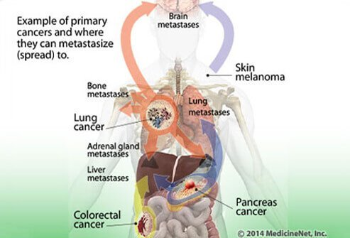 Illustration showing the examples of primary cancers and locations to which they can metastasize (spread).