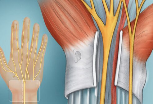 The ligament overlying the top of the carpal tunnel is cut to relieve pressure.