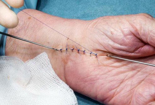 Carpal tunnel surgery relieves symptoms but recovery may take up to six months to one year.