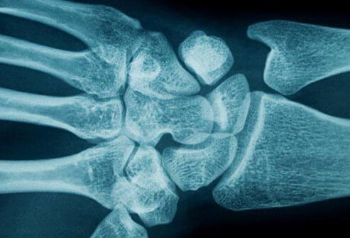 Any number of conditions or injuries that cause swelling or inflammation in the area may lead to compression of the median nerve.