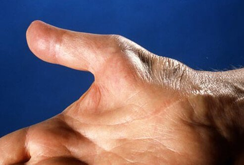 If it is untreated, carpal tunnel syndrome symptoms may wax and wane.
