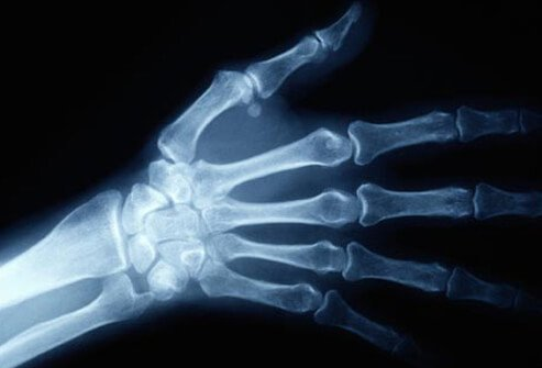 Pain, numbness, tingling, weakness, and muscle atrophy can be due to symptoms other than carpal tunnel syndrome.
