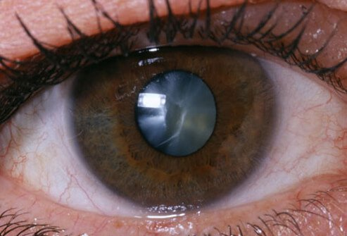 Photo of close up of eye.