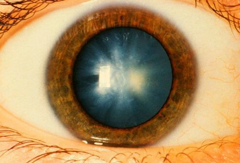 Photo of close up of cataracts.