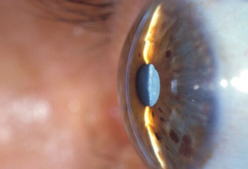Photo of side view of cataracts.