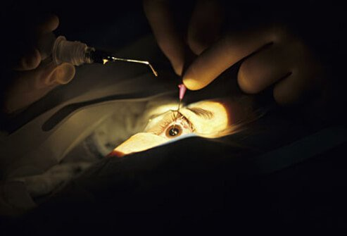 Surgery to remove cataracts may be required if the related vision loss cannot be corrected with glasses or contact lenses.