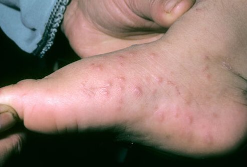 Coxsackievirus is the cause of hand, foot, and mouth disease.