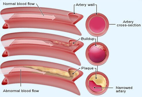 Cholesterol is a waxy, fat-like substance that your body needs to function normally.