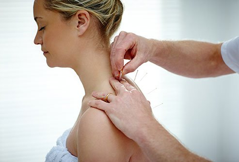 Acupuncture needles provide relief for pain syndromes.