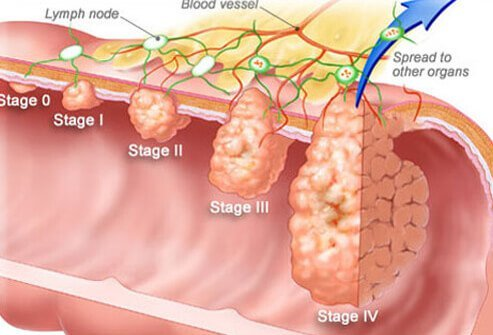 Illustration of colorectal cancer stages