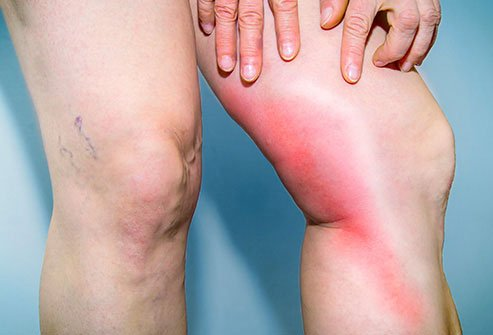 DVT may cause pain and redness in the affected leg.