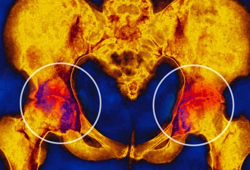 An inflamed arthritic joint aches.