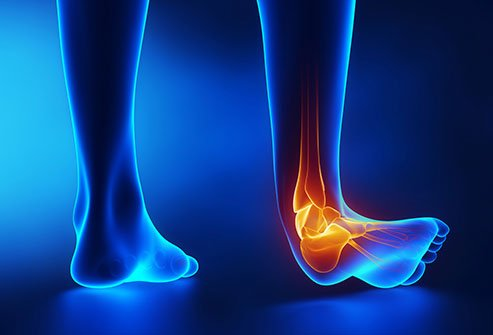 A sprained ankle causes lower leg pain.