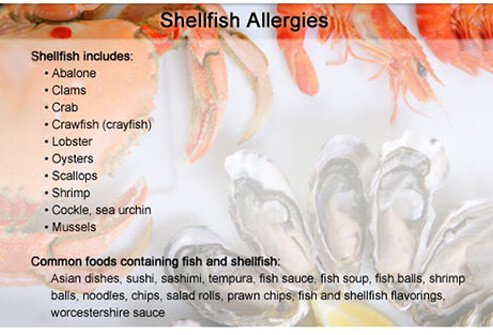People with shellfish allergies should avoid these foods and ingredients.