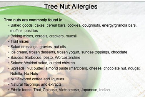 People with tree nut allergies should avoid these foods and ingredients.