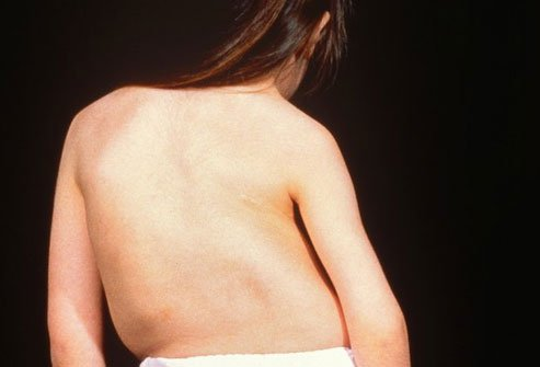 Scoliosis is one of the conditions that can twist your spine out of shape.