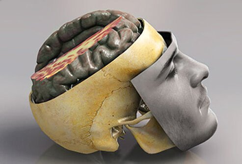 Although the brain is protected by tough bone (skull) and padding (membranes), it can still be injured.