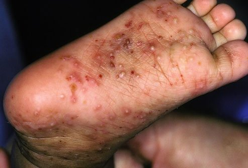 Scabies causes an itchy, pimpley rash.