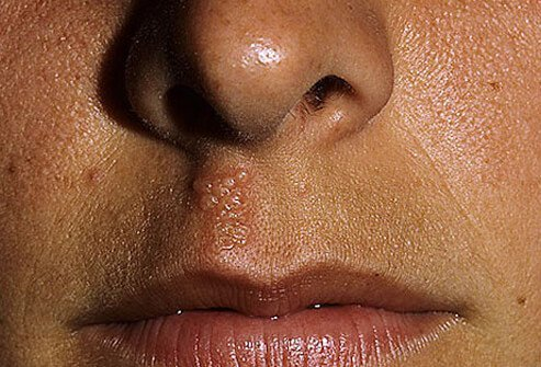 A photo of a herpes sore under the nose and above the lip