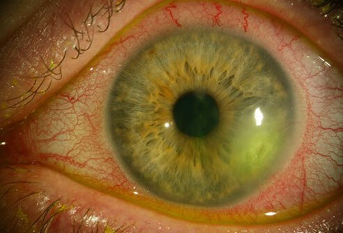 A photo of a herpes eye infection