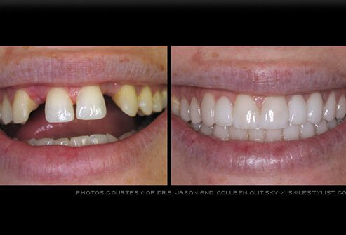 Missing teeth restored with dental bridge.