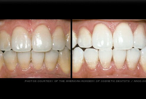 Stained teeth professionally whitened.
