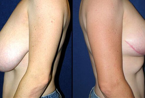 Photos of before and after breast reduction surgery.