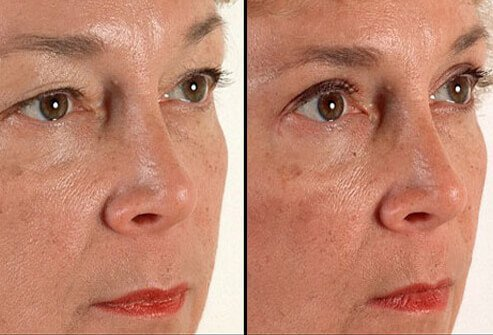 Photos before and after eyelid surgery.